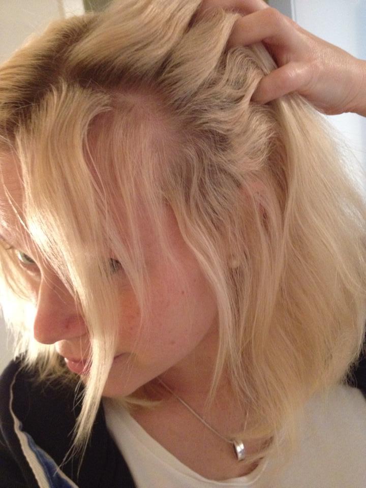 tappa hår efter graviditet